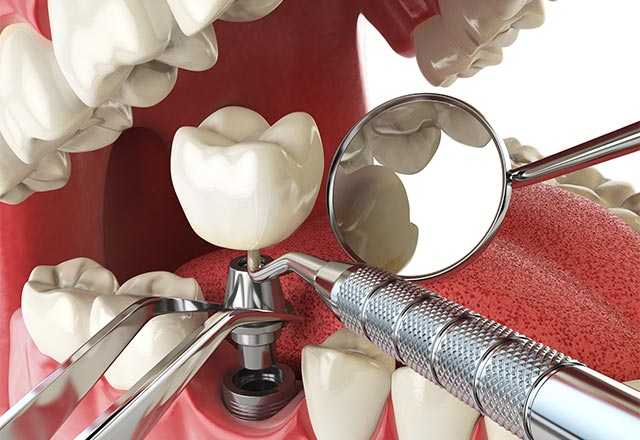 Dental implant restoration Allentown Lehigh Valley Northampton PA